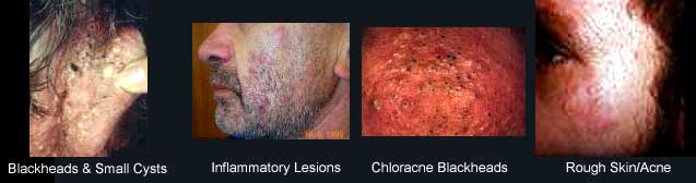 Chloracne